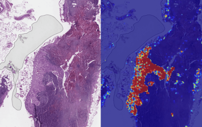 Google's AI to detect breast cancer