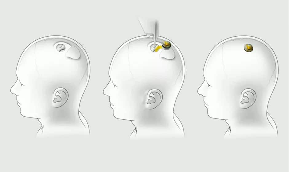 Neuralink: Elon Musk's Replacement for Wearable Tech